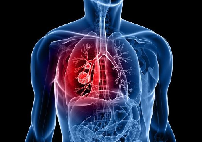 https://www.ragusanews.com//immagini_articoli/01-06-2020/cancro-ai-polmoni-nuovo-farmaco-cala-80-rischio-di-recidiva-o-morte-500.jpg