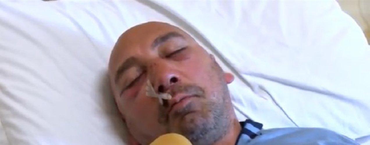 https://www.ragusanews.com//immagini_articoli/02-03-2019/volontario-spaccano-setto-nasale-500.jpg