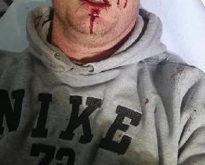 https://www.ragusanews.com//immagini_articoli/02-05-2020/picchiato-selvaggiamente-perche-difende-il-proprio-vigneto-240.jpg