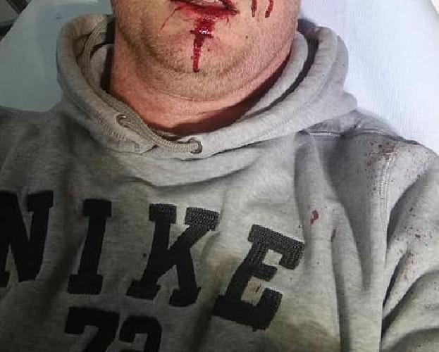 https://www.ragusanews.com//immagini_articoli/02-05-2020/picchiato-selvaggiamente-perche-difende-il-proprio-vigneto-500.jpg