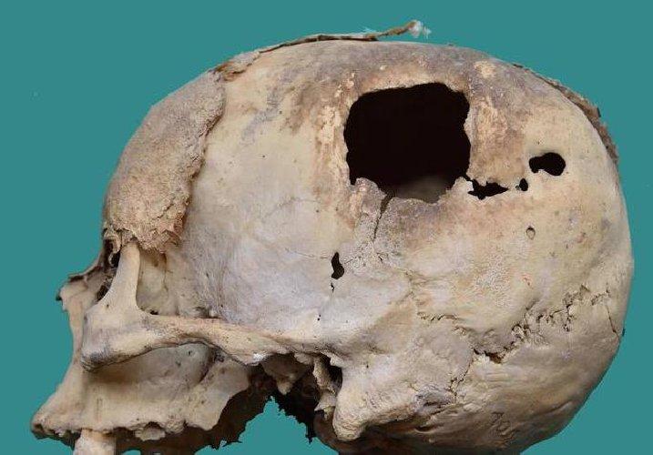 https://www.ragusanews.com//immagini_articoli/03-01-2018/comiso-cranio-testimonianza-neurochirurgia-500.jpg