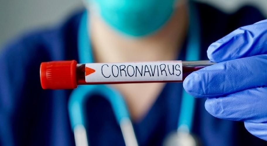 https://www.ragusanews.com//immagini_articoli/03-07-2020/coronavirus-sicilia-ieri-un-solo-nuovo-positivo-e-nessun-morto-500.jpg