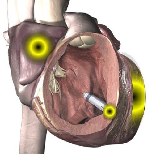 https://www.ragusanews.com//immagini_articoli/07-10-2020/impiantato-un-pacemaker-senza-fili-a-ragusa-500.jpg