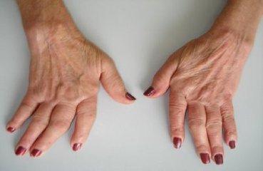 http://www.ragusanews.com//immagini_articoli/10-12-2017/artrite-reumatoide-pillola-curativa-rimborsabile-240.jpg