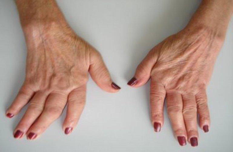 http://www.ragusanews.com//immagini_articoli/10-12-2017/artrite-reumatoide-pillola-curativa-rimborsabile-500.jpg