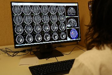https://www.ragusanews.com//immagini_articoli/11-05-2018/ospedale-cannizzaro-gamma-knife-trattati-primi-pazienti-240.jpg