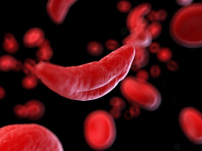 https://www.ragusanews.com//immagini_articoli/11-06-2021/da-milano-la-staffetta-di-donatori-di-sangue-raro-per-salvare-una-siciliana-500.jpg