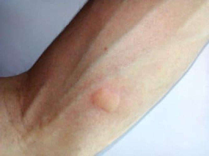 https://www.ragusanews.com//immagini_articoli/12-08-2018/morso-zanzara-soluzione-inedita-ghiaccio-secco-500.jpg