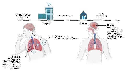 https://www.ragusanews.com//immagini_articoli/13-05-2021/post-covid-l-onda-lunga-della-malattia-lo-studio-siciliano-280.jpg