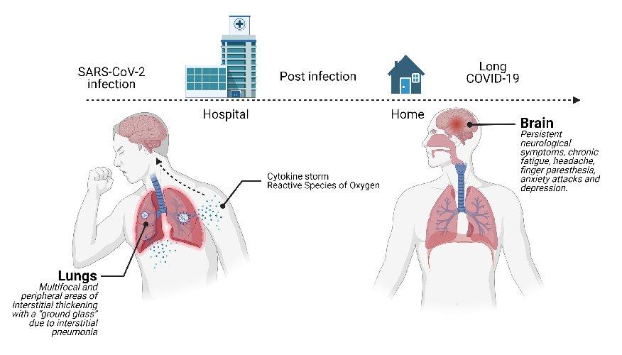 https://www.ragusanews.com//immagini_articoli/13-05-2021/post-covid-l-onda-lunga-della-malattia-lo-studio-siciliano-500.jpg