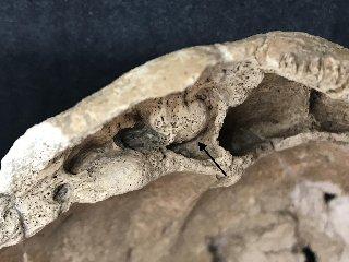 https://www.ragusanews.com//immagini_articoli/16-12-2018/paleopatologia-tumore-benigno-ossa-scheletri-siciliani-240.jpg