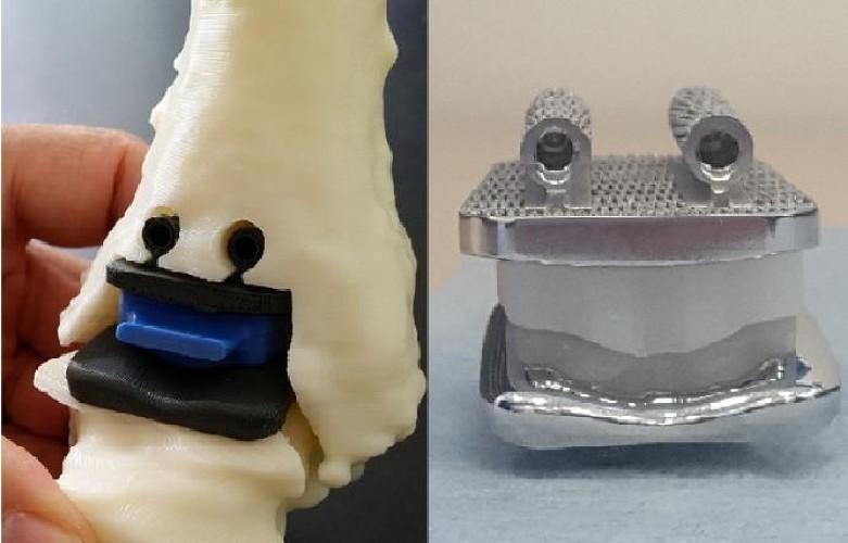 https://www.ragusanews.com//immagini_articoli/17-06-2020/sicilia-ecco-la-protesi-alla-caviglia-stampata-in-3d-500.jpg