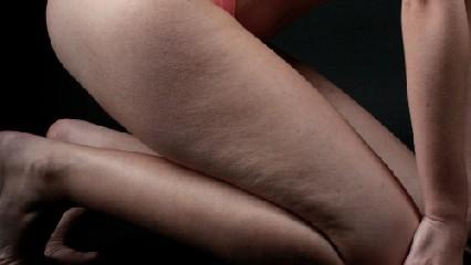 https://www.ragusanews.com//immagini_articoli/17-09-2020/dieta-anticellulite-come-combatterla-con-l-alimentazione-240.jpg