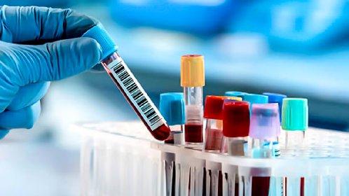 https://www.ragusanews.com//immagini_articoli/19-10-2020/coronavirus-362-casi-in-sicilia-tre-morti-280.jpg