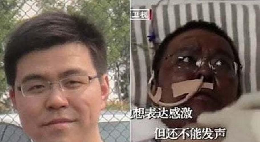 https://www.ragusanews.com//immagini_articoli/22-04-2020/medici-cinesi-contagiati-si-svegliano-dal-coma-con-la-pelle-nera-500.jpg