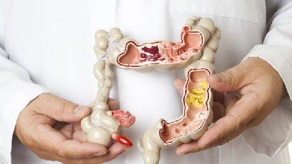 https://www.ragusanews.com//immagini_articoli/22-05-2018/malattia-crohn-colite-ulcerosa-nasce-portale-240.jpg