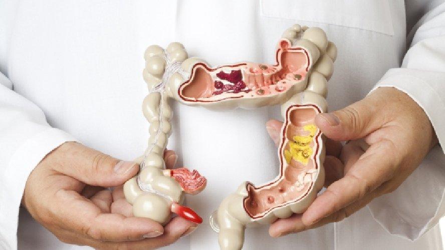 https://www.ragusanews.com//immagini_articoli/22-05-2018/malattia-crohn-colite-ulcerosa-nasce-portale-500.jpg