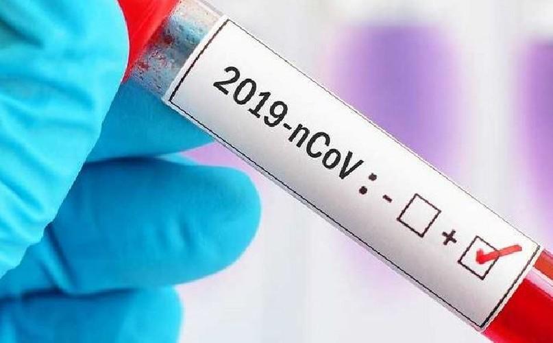 https://www.ragusanews.com//immagini_articoli/24-07-2020/coronavirus-2-ricoverati-all-ospedale-di-ragusa-500.jpg