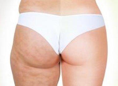 https://www.ragusanews.com//immagini_articoli/25-01-2021/killer-il-rimedio-naturale-anti-cellulite-fai-da-te-280.jpg