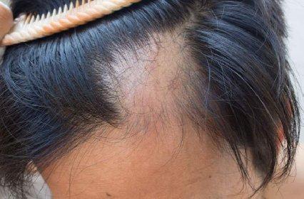 https://www.ragusanews.com//immagini_articoli/26-02-2021/caduta-dei-capelli-da-covid-19-cosa-fare-280.jpg