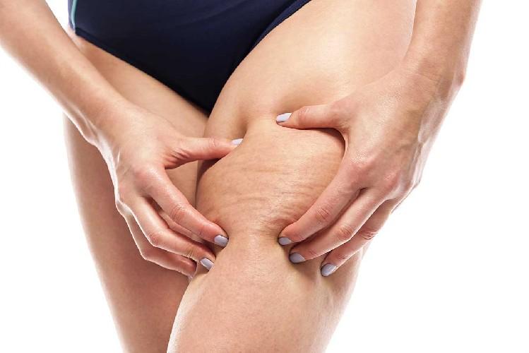 https://www.ragusanews.com//immagini_articoli/26-05-2020/i-rimedi-migliori-per-combattere-la-cellulite-500.jpg