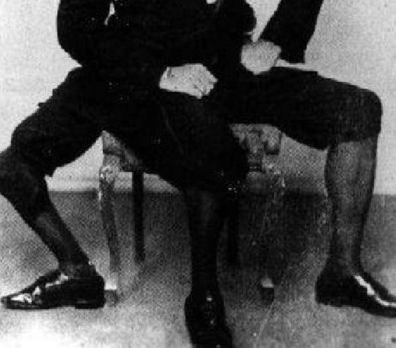 https://www.ragusanews.com//immagini_articoli/29-08-2010/l-uomo-di-rosolini-che-aveva-tre-gambe-e-due-paia-di-organi-genitali-500.jpg