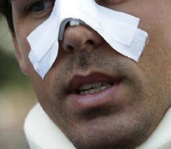 https://www.ragusanews.com//immagini_articoli/30-10-2014/rompono-il-naso-alla-vittima-identificati-500.jpg