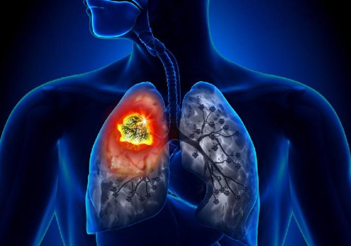 https://www.ragusanews.com//immagini_articoli/31-05-2020/l-eredita-del-coronavirus-sara-un-epidemia-di-tumori-al-polmone-500.jpg