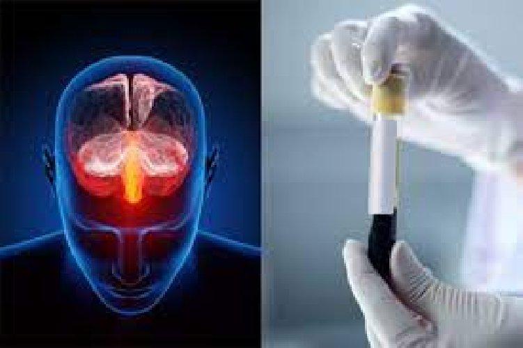 Depressione, arriva un esame del sangue per la diagnosi