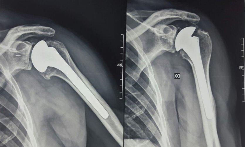 https://www.ragusanews.com/resizer/resize.php?url=https://www.ragusanews.com//immagini_articoli/12-05-2017/1494596212-1-siracusa-appuntamenti-dedicati-chirurgia-protesica-articolare.jpg&size=835x500c0